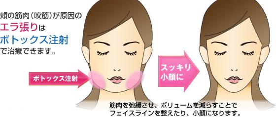 ボトックス注射は小顔効果にも有効